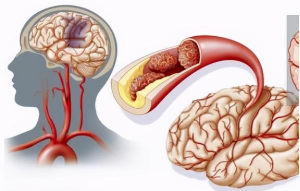 血压偏高的人,请自觉管住嘴:这3种绿色食物尽量别吃
